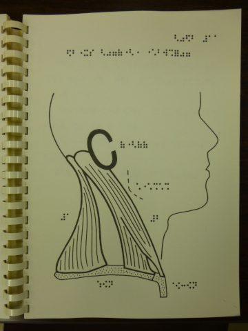 写真4 側頸部の筋の触察図